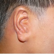 after ear reconstruction